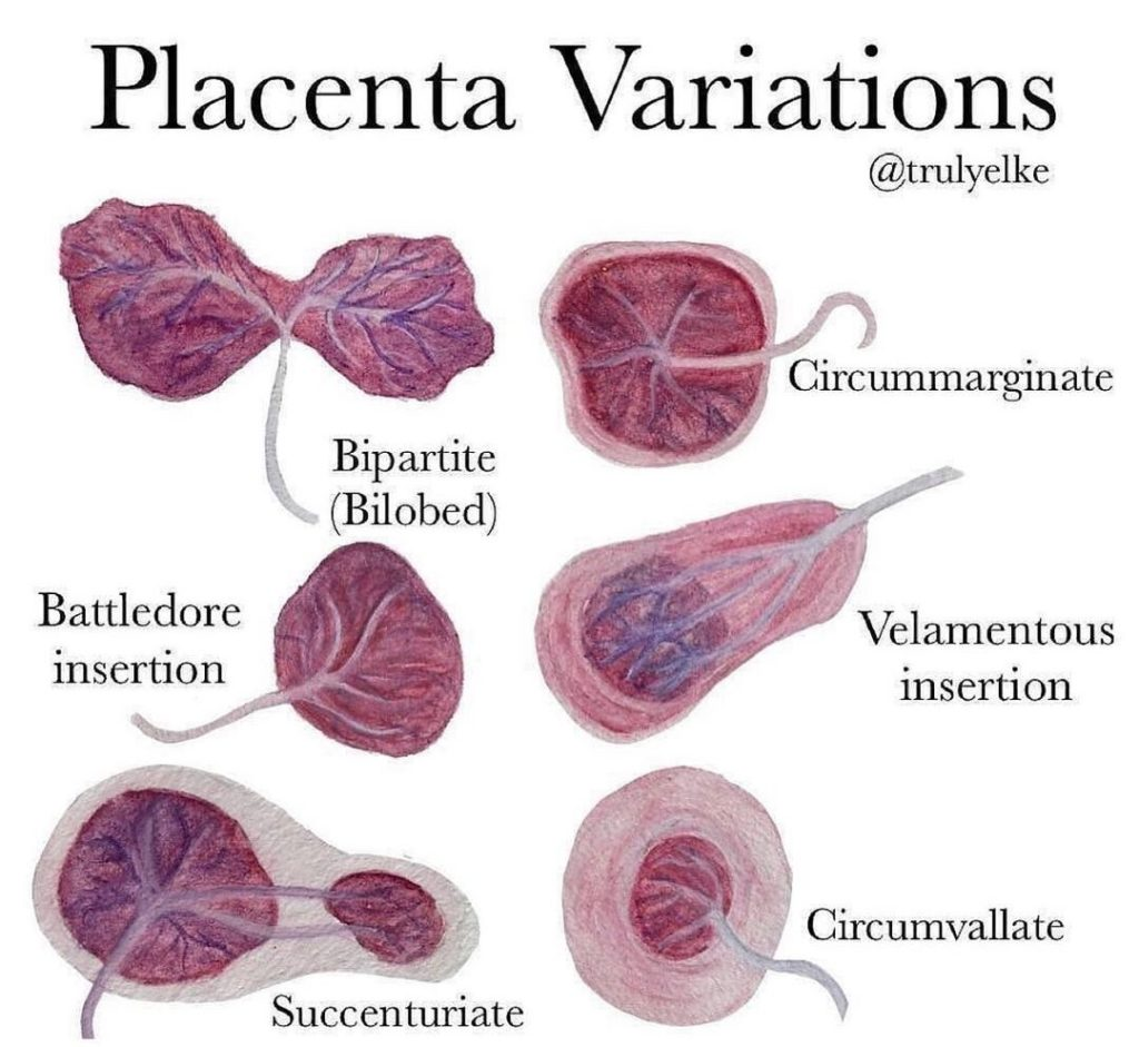 Placenta Variations  Typically The Umbilical Cord Is Inserted In Or Near The Cen...
